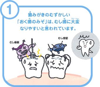 歯みがきのむずかしい「おく歯のみぞ」は、むし歯に大変なりやすいと言われています。