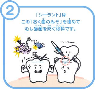 「シーラント」はこの「おく歯のみぞ」を埋めてむし歯菌を防ぐ材料です。