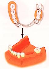 入れ歯による治療(歯に金具をかけるため目立ってしまう)