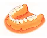 従来の総入れ歯